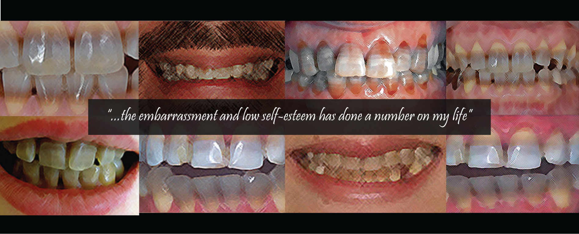 Tetracycline Teeth Staining, Our Impact, Affecting Change, banner with quote