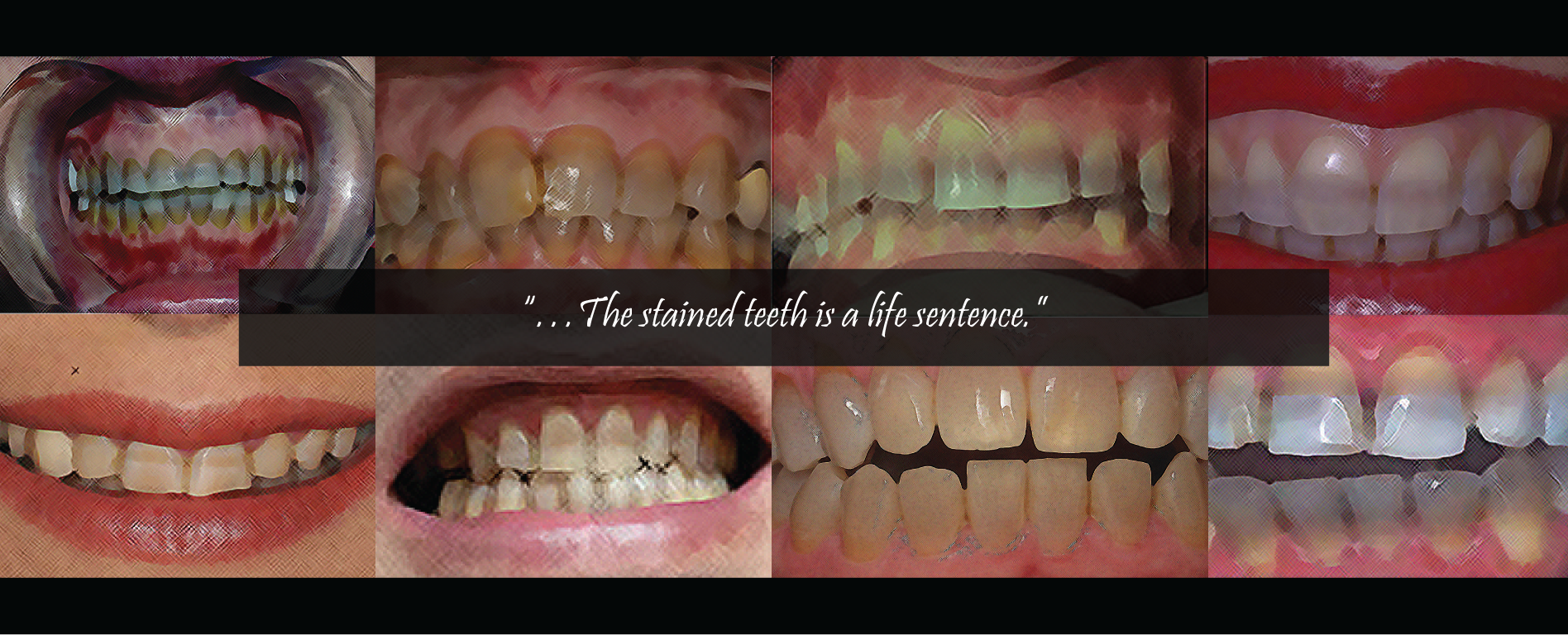 Tetracycline Teeth Staining, Dark Teeth, Grey Teeth, Dental Issues, Teeth Discoloration,Testimonial Quote