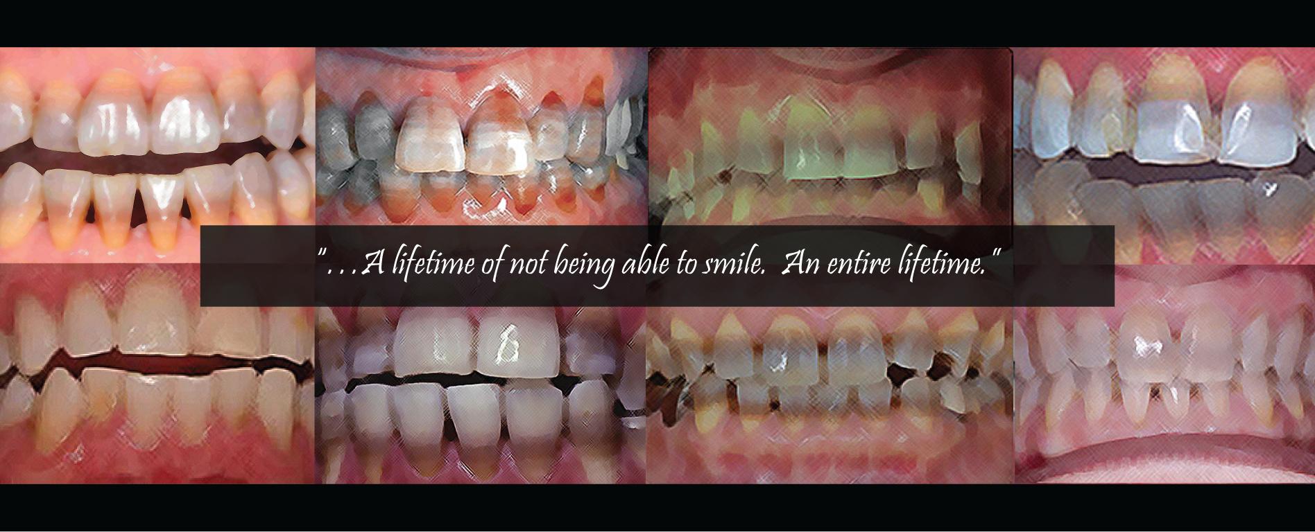 Testimonials From Sufferers   Children of Tetracycline Teeth